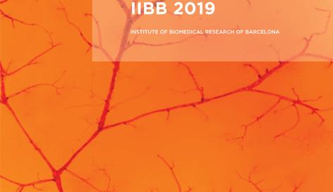 IIBB - CSIC